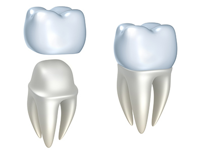 Computerized image of dental crowns.