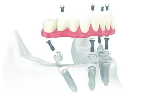 If You Get One Set of Dentures on Implants, Which Arch Should It Be?