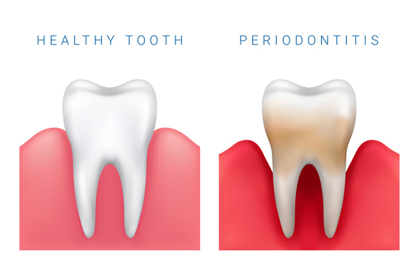 Healthy tooth vs. Periodontal disease image